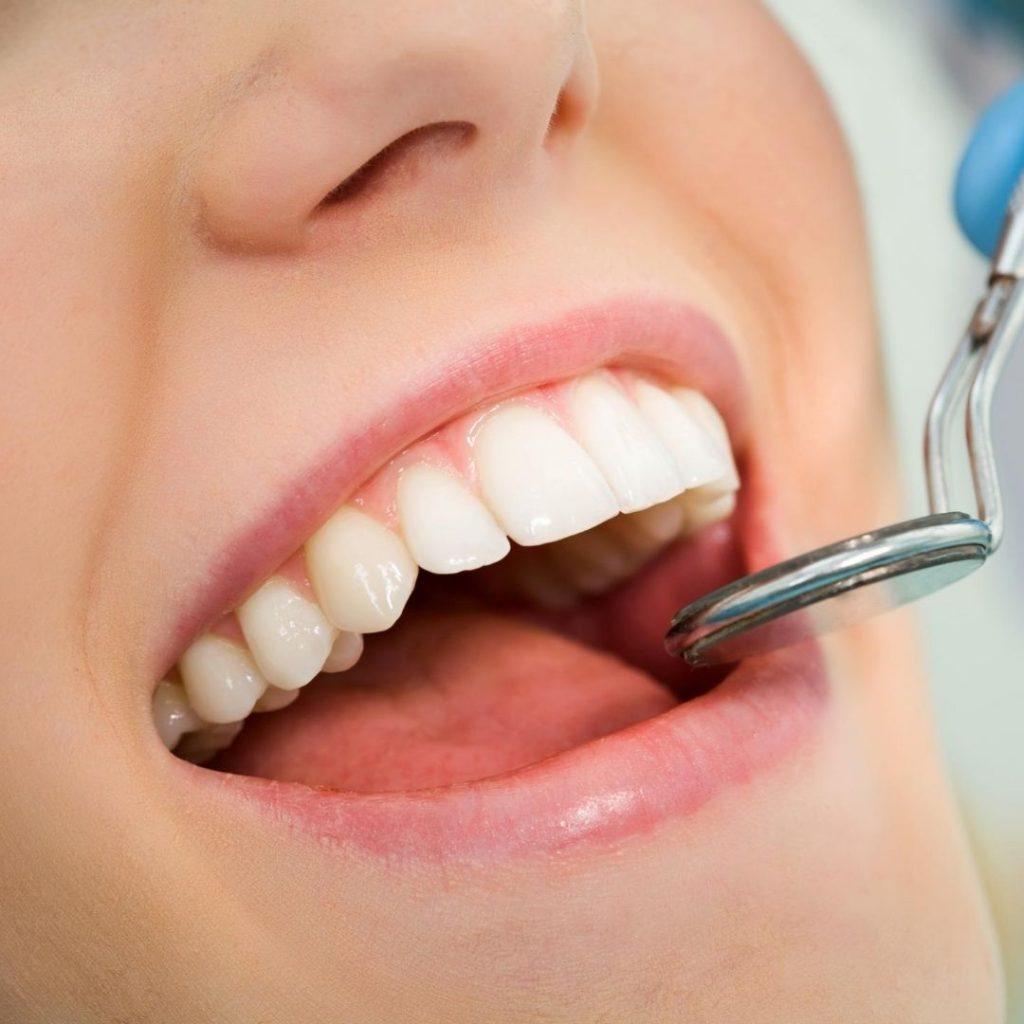 caries dentales tratamiento