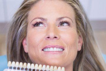 Consejos para el mantenimiento del blanqueamiento dental