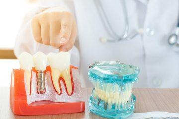 ¿Cuánto tiempo duran los implantes dentales y cómo se mantienen?